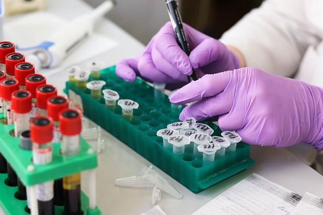 Los tests, ¿son necesarios en las empresas? Te contamos las conclusiones del ISPLN